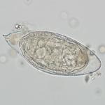 parasite that causes schistosomiasis.