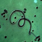 Filarial parasite.